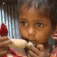 malnutrition-image-wefornews
