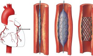 stents for heart surgery