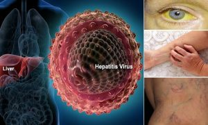 Hepatitis Virus