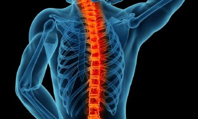 Spinal-
